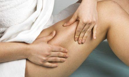 Cellulite: che dieta seguire per eliminarla