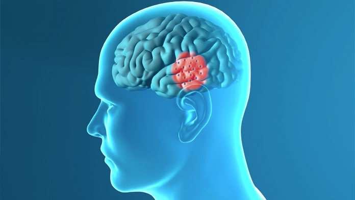 Il Parkinson si riconosce dall'odore della pelle