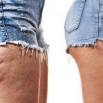 Cellulite e pancia gonfia, gli effetti benefici dell'olio di finocchio