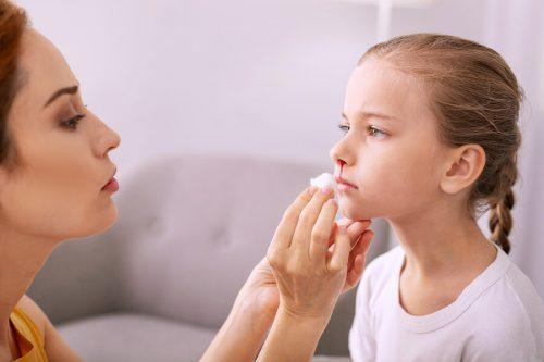 Sangue dal naso nei bambini